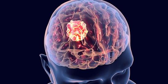 Ini Dia Gejala dan Tindakan Penanganan Kanker Otak Stadium 4!