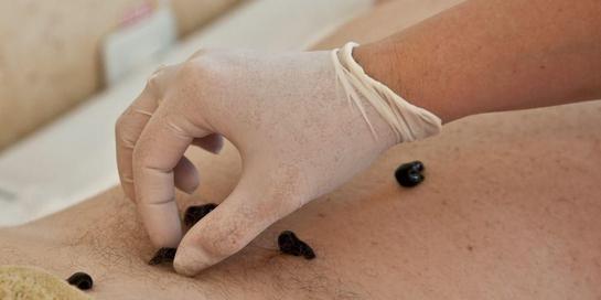 Terapi lintah dipercaya mampu mengobati sejumlah penyakit, termasuk wasir dan darah tinggi.