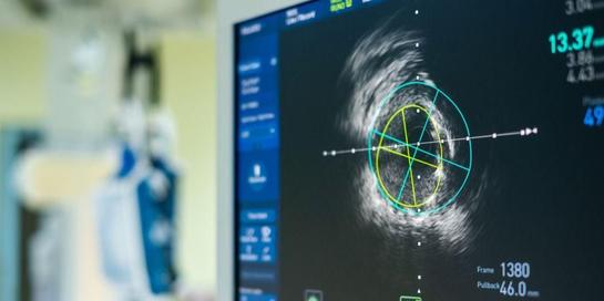 IVUS dianggap lebih akurat dan canggih ketimbang pengobatan jantung koroner biasa