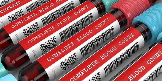 Pemeriksaan darah lengkap bisa mendeteksi berbagai penyakit, terutama gangguan darah