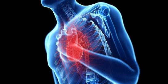 Penyebab jantung koroner adalah penyumbatan aliran darah ke jantung