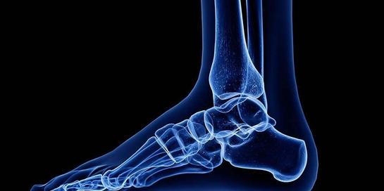 Penderita kaki charcot rentan mengalami patah kaki dan dislokasi