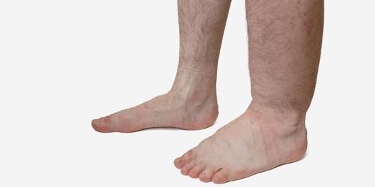 Penyakit kaki gajah adalah infeksi yang disebabkan oleh cacing parasit
