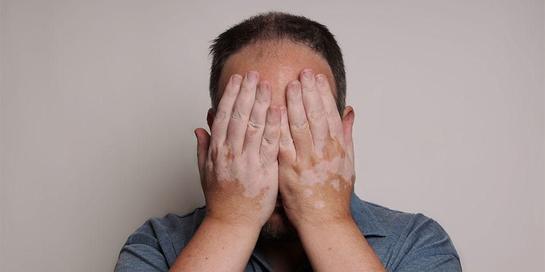 Hipopigmentasi adalah kondisi kulit di mana kulit berwarna lebih terang sebagian
