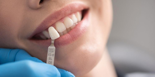 Prosedur pasang gigi palsu berbeda tergantung jenisnya