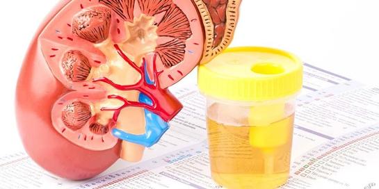 Protein dalam urin berlebih yang merupakan gangguan fungsi ginjal dapat terdeteksi saat melakukan medical check up
