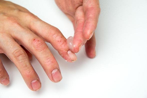 Betamethasone topikal digunakan untuk mengobati gatal dan peradangan pada kulit