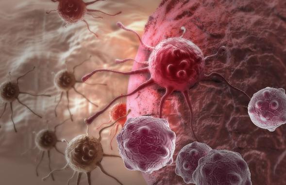 Busulfan digunakan sebagai bagian dari kemoterapi