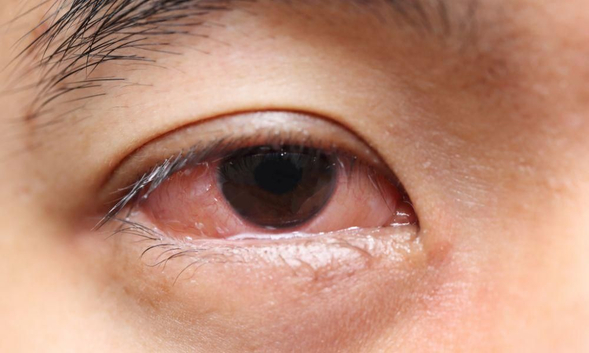 Mata merah yang disebabkan oleh mata gatal dapat diobati dengan mengkonsumsi Desloratadine