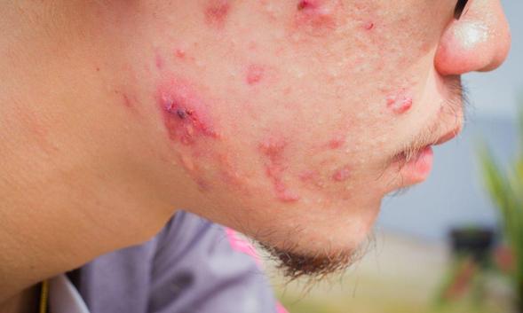 Erythromycin digunakan untuk mengobati berbagai jenis infeksi bakteri