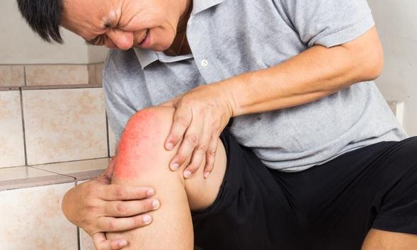 Etoricoxib dapat mengatasi gejala peradangan sendi pada osteoarthritis dan rheumatoid arthritis