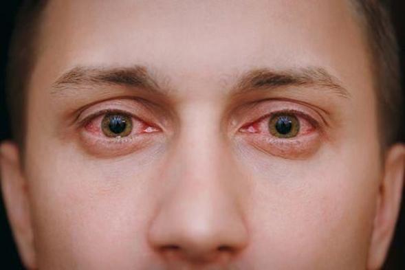 Framycetin tersedia dalam bentuk tetes mata, tetes telinga, dan krim