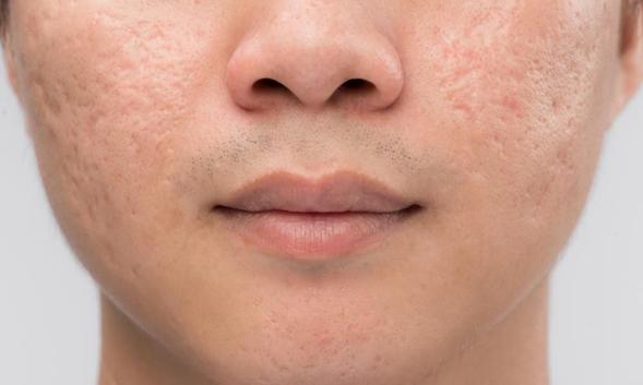 Hydroquinone adalah obat yang dapat mengatasi hiperpigmentasi pada kulit