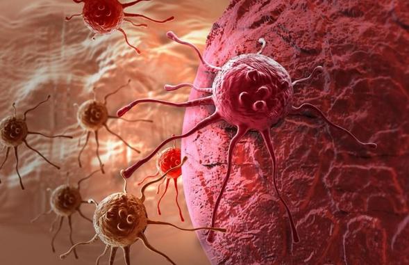 Hydroxyurea adalah obat yang digunakan untuk mengobati leukemia