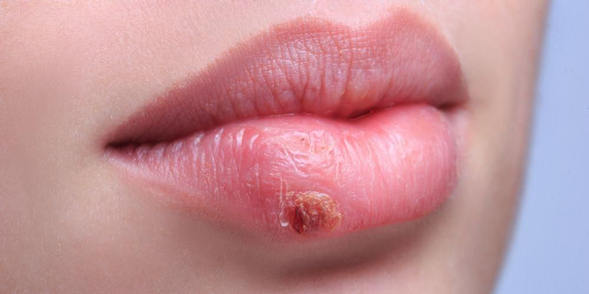 Methisoprinol adalah obat golongan antivirus untuk menyembuhkan penyakit kelamin