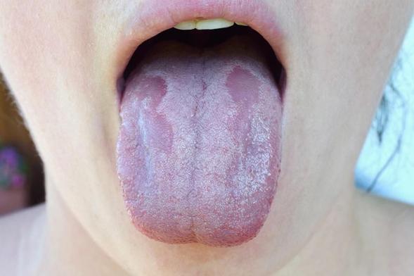 Nystatin digunakan untuk mengobati infeksi jamur di rongga mulut, tenggorokan, usus, dan vagina