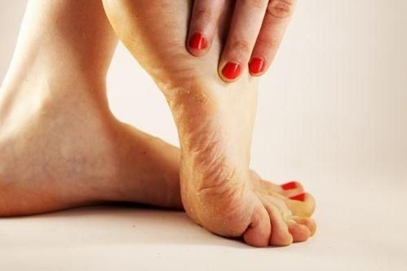 Efek samping dari oxiconazole yaitu gatal, iritasi, kulit terasa terbakar, dan lainnya