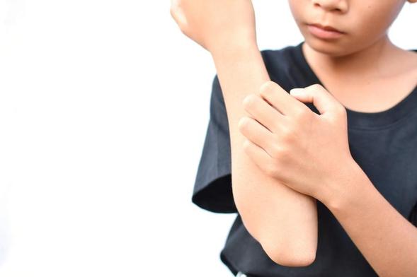 Permethrin digunakan untuk mengobati infeksi parasit pada kulit