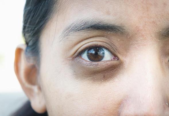 Promethazine digunakan untuk meredakan alergi seperti rinitis alergi