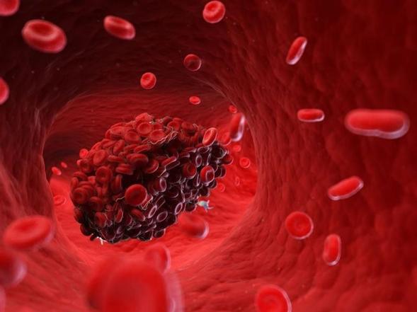 Warfarin adalah obat yang digunakan untuk menangani bekuan darah