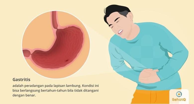 Gastritis Forum