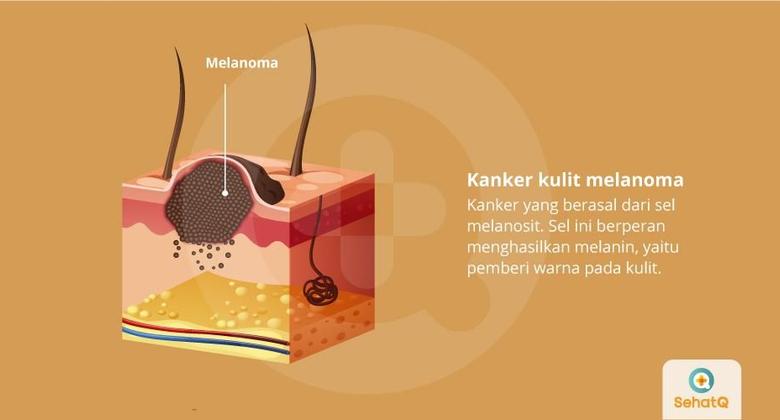 Kanker Kulit Melanoma | Gejala, Diagnosis, Pengobatan