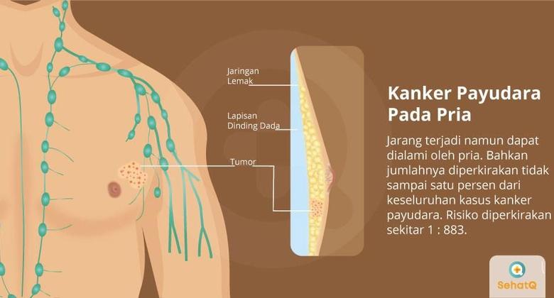 Kanker Payudara pada Pria | Gejala, Diagnosis, Pengobatan