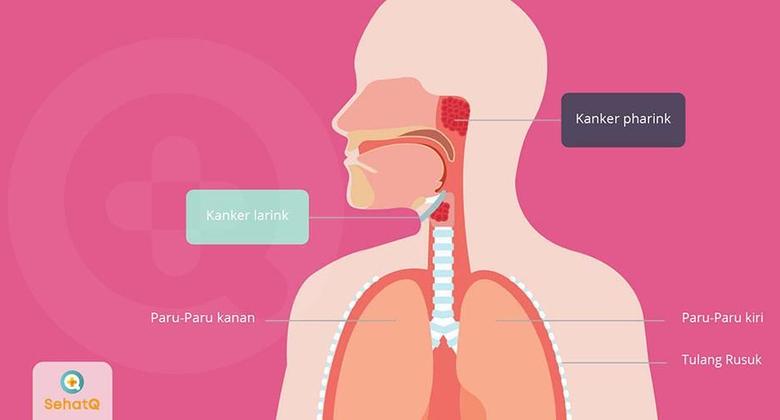 Kanker Tenggorokan | Gejala, Diagnosis, Pengobatan