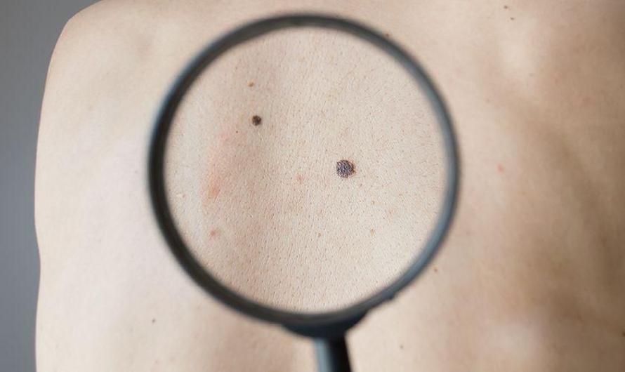 Tahi Lalat Vs Penyakit Melanoma: Kenali Perbedaannya ...