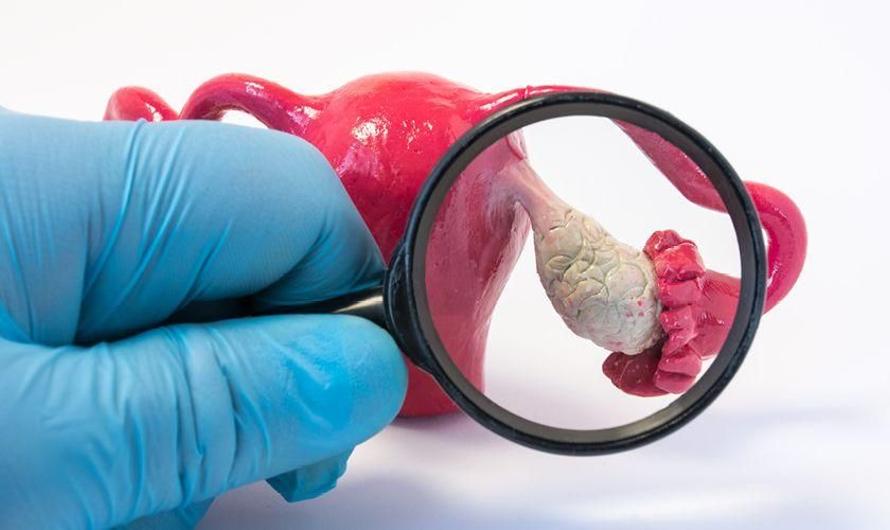 Tanda-tanda Kanker Ovarium yang Perlu Dipahami Wanita
