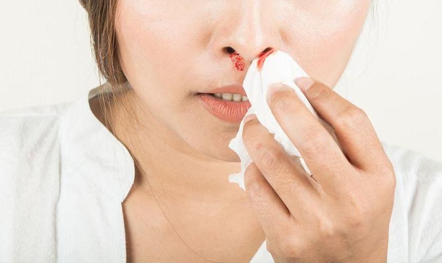 Virus Penyebab Kanker Nasofaring Ada di Sekitar Kita