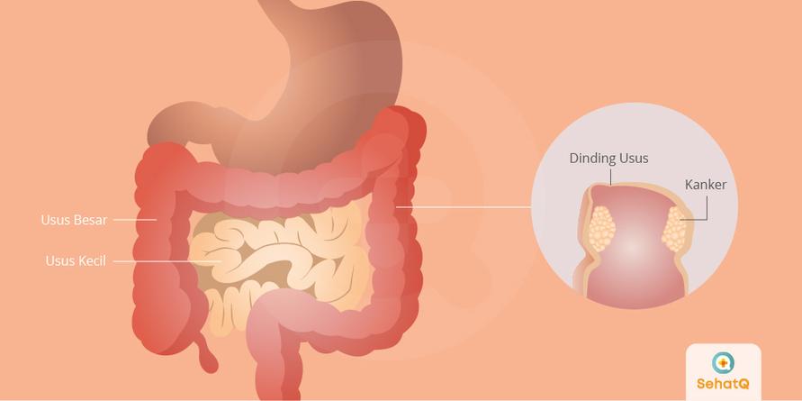 Kanker Usus Besar | Gejala, Diagnosis, Pengobatan