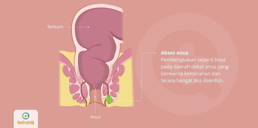 Penyebab umum abses anus adalah tersumbatnya kelenjar anus, luka pada dinding anus, atau infeksi menular seksual