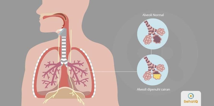 Cairan menumpuk di kantung udara elastis kecil (aveoli) di paru-paru