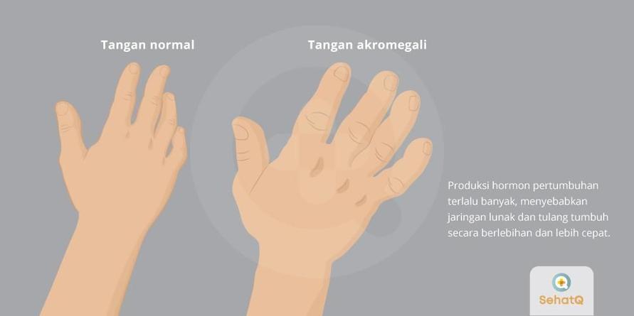 Akromegali disebabkan oleh hormon pertumbuhan yang menyebabkan jaringan lunak dan tulang tumbuh secara berlebihan