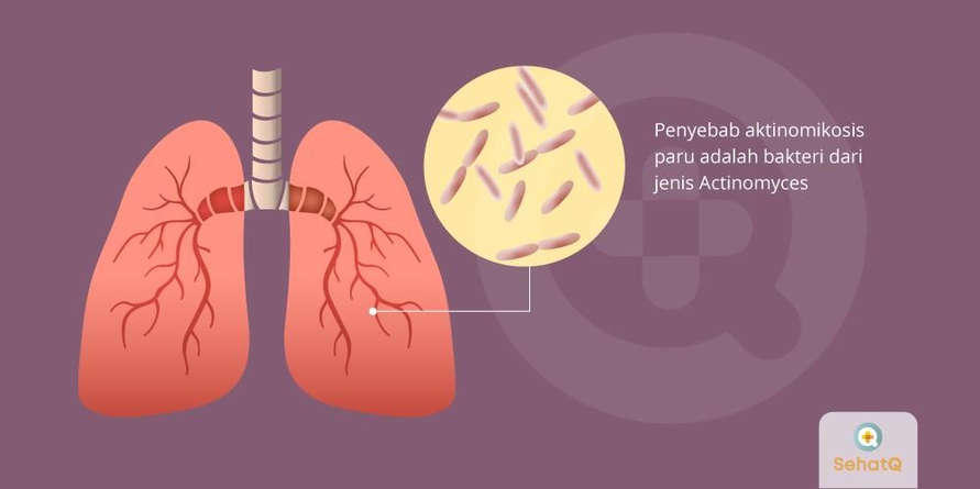 Berkeringat di malam hari merupakan salah satu gejala aktinomikosis paru.