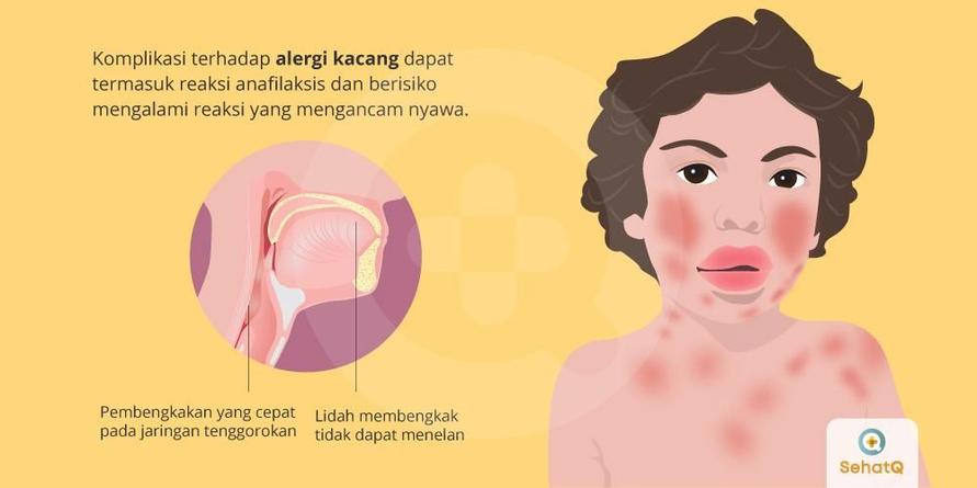 Alergi kacang adalah salah satu penyebab umum terjadinya serangan alergi berat.