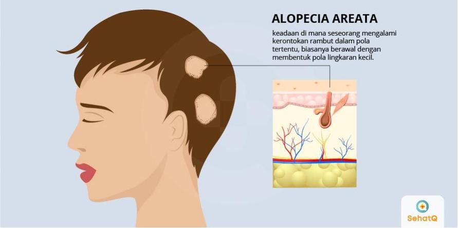 Kebotakan di rambut kepala kemudian dapat berkembang dan menyebar menjadi lebih luas