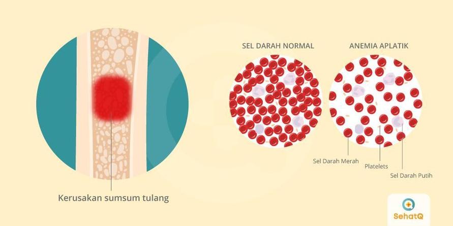 Anemia aplastik disebut juga sebagai penyakit dengan kegagalan sumsum tulang