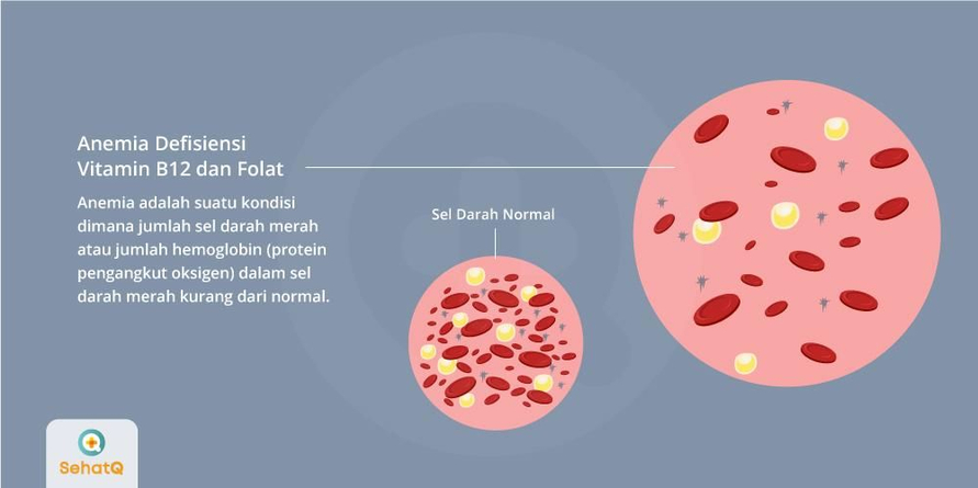 Anemia defisiensi vitamin B12 dan folat adalah kondisi dimana jumlah hemoglobin dalam sel darah merah kurang dari normal