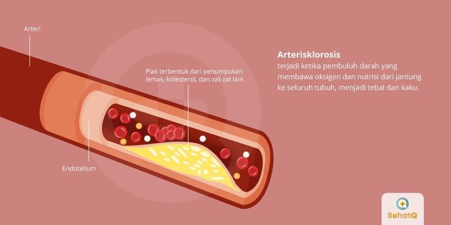Arteriosklerosis adalah penyakit yang terjadi ketika ada sumbatan yang menghambat aliran darah dan oksigen