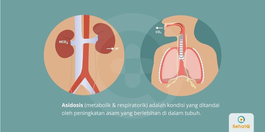 Asidosis adalah kondisi peningkatan asam yang tinggi di darah