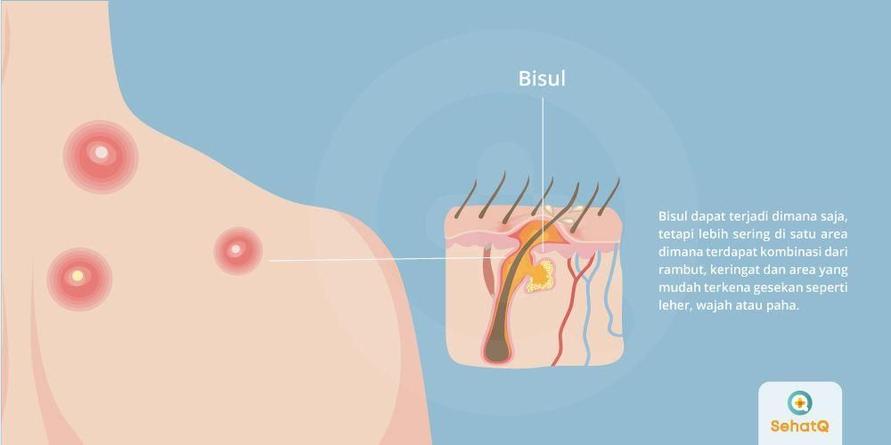 Bisul lebih sering tejadi di satu area yang terdapat kombinasi dari rambut dan keringat