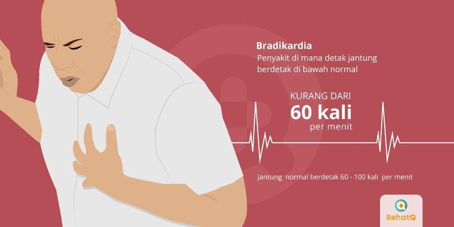 Bradikardia adalah penyakit yang ditandai dengan detak jantung berdetak di bawah normal
