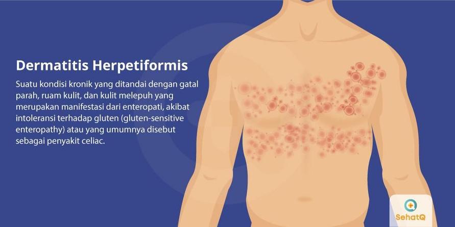 Rasa terbakar pada kulit, bisa menjadi gejala awal dermatitis herpetiformis.