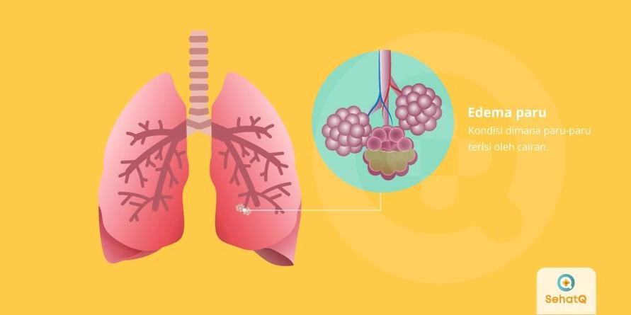 Edema paru ditandai dengan gejala seperti sesak napas, batuk darah, napas berbunyi dan berkeringan secara berlebihan.