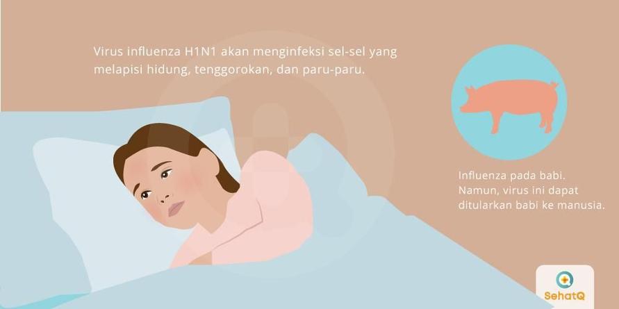 Penyakit flu babi disebarkan oleh virus influenza H1N1