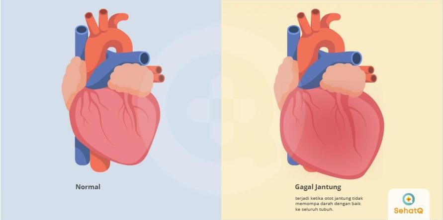 Gagal jantung disebut juga heart failure.