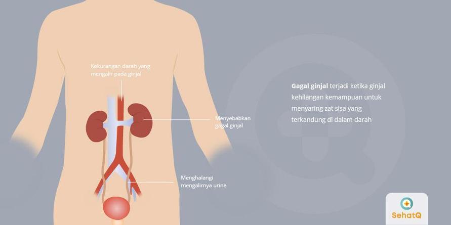 Dehidrasi dapat menyebabkan gangguan ginjal akut karena mengurangi aliran darah ke dalam ginjal