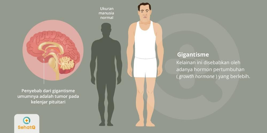 Gigantisme disebabkan oleh adanya hormon pertumbuhan (growth hormone) yang berlebih